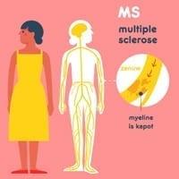 Animatie MS